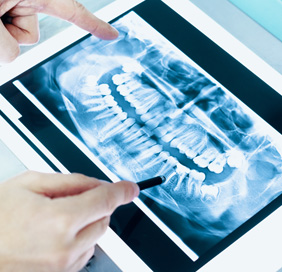 Medicaid Accepted Tooth Extraction Dentist Lathrup Village & Southfield Michigan - dental-xray